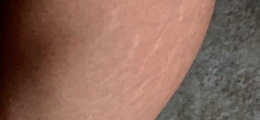 Smagliature polpaccio